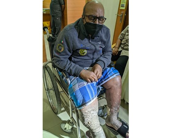 Help My Father Who Is Struggling With Kidney And Severe Leg Infection.