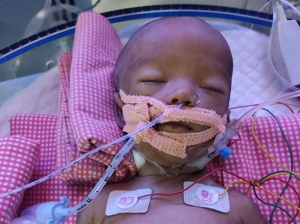 Help my 3 month old son fight Severe LV dysfunction & Respiratory failure