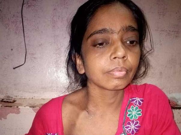 Help Shabnam Shaikh For her regular Hemodialysis for her Kidneys