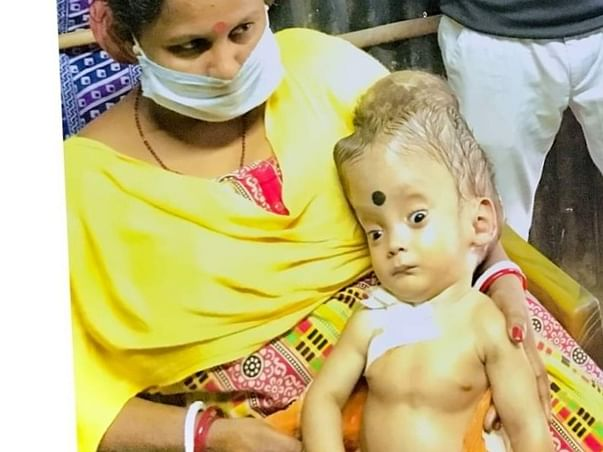 Support Ayush Ram Sharma Recover From Hydrocephalus ( Water In Head )