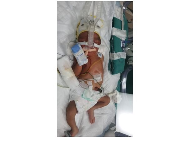 Support Baby Of Namrata Newton To Recover From Preterm Birth