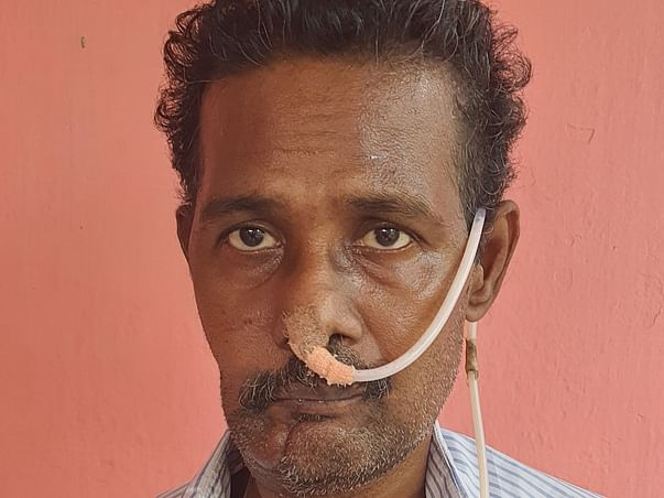 50 years old Ram Kumar needs your help fight cancer