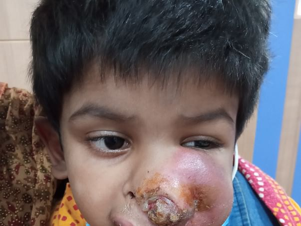 This 4 Years Old Needs Your Urgent Support In Recovering Paranasal Sinus And Nasal Cavity Cancer