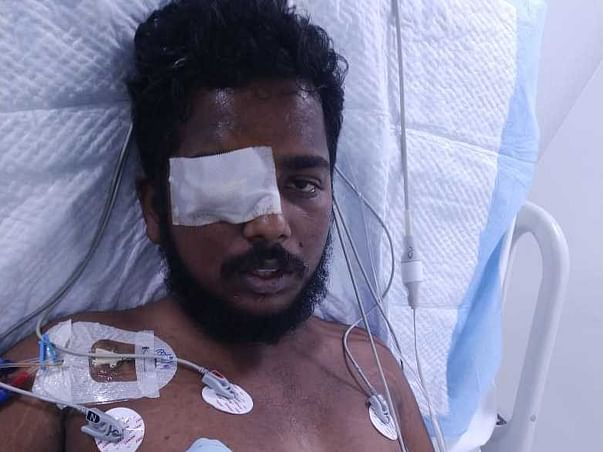 Support Darshan Recover From Fungal Eye Infection