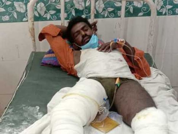 Support T.rajesh fight/recover from Leg injury ,one leg is removed and another is injured