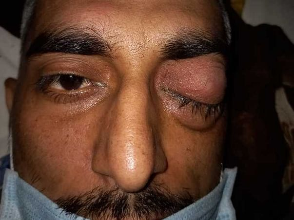 28 Years Old Azad Singh Needs Your Help Recover Fungus Infection Brain, Ears, Eyes,