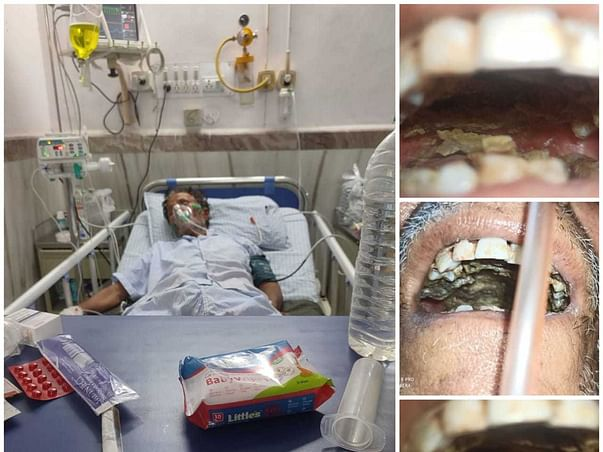 Help My father to fight from fungal disease after recovering from