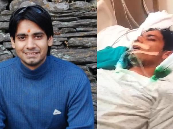 Support Ashish Vasistha (Ajju) to recover from Lungs Failure