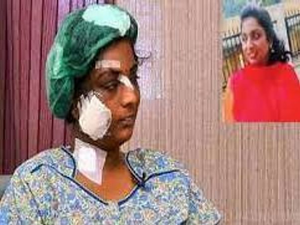 Support Lavanya To Recover From Her Violent Injuries