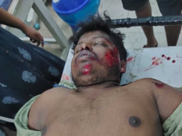 Help Bhaskar who had met with an accident unfortunately.