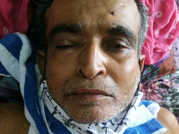 62 Years Old Gandubhai Needs Your Help Recover From Mucormycosis