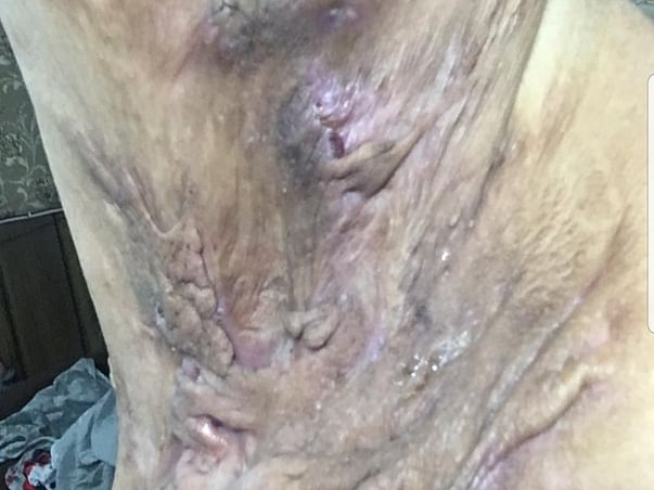 18 years old Kiran needs your help fight Hidradenitis suppurativa Also called: acne inversa