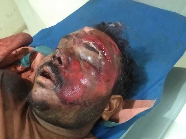 Support Naseer To Recover From Accidental Injuries
