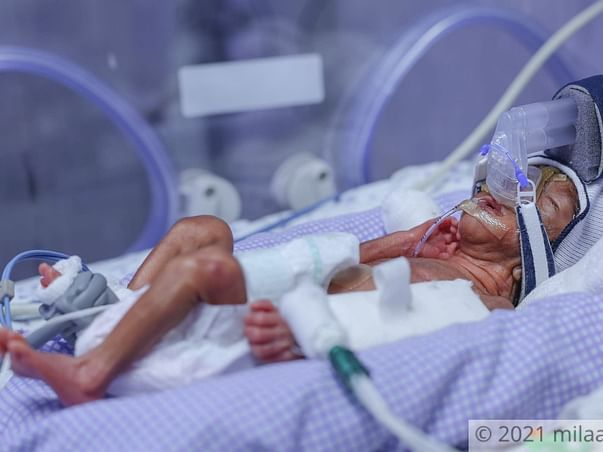 They Finally Became Parents But Their Baby's Life Is At Risk!