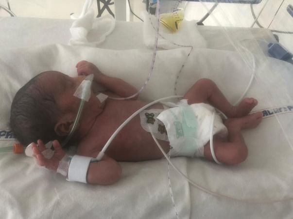 15 Days Old Babies Of Kalyani Need Your Help