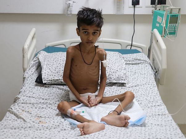 Rare Disease Has Reduced 9-Year-Old Ayaan To Just Skin And Bones!
