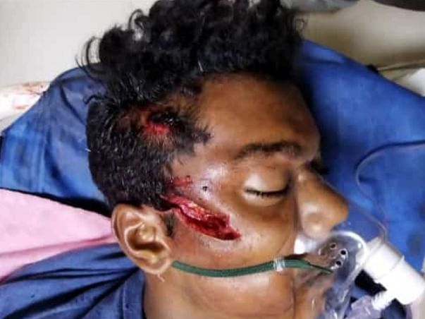 Help Kruthik From Sleepy Recovery (Coma)