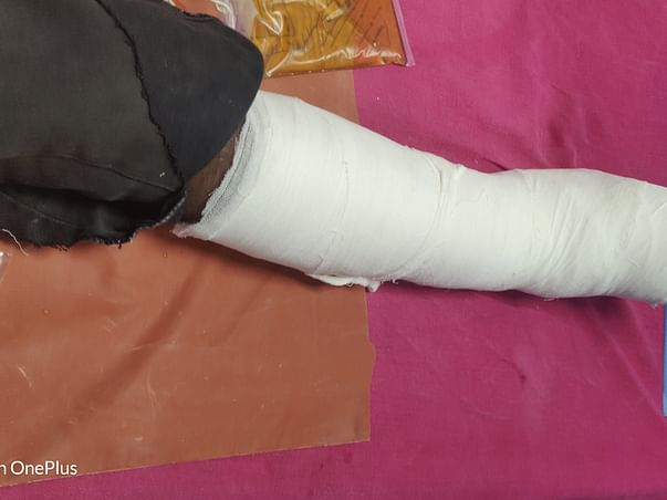 Help My Brother Manimaran D Recover From Accident
