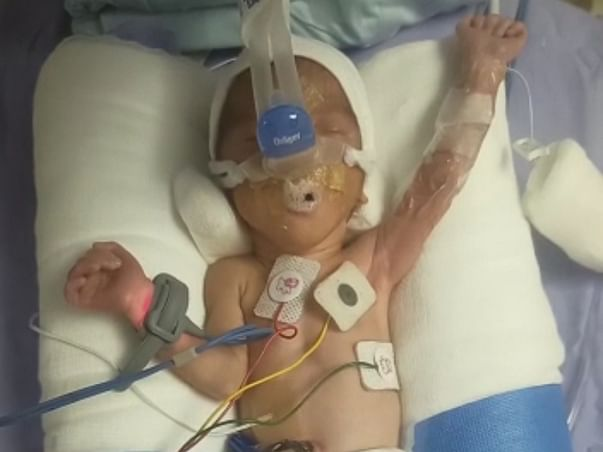 Support 28 Weeks Born Preterm Twin Babies Admitted In NICU