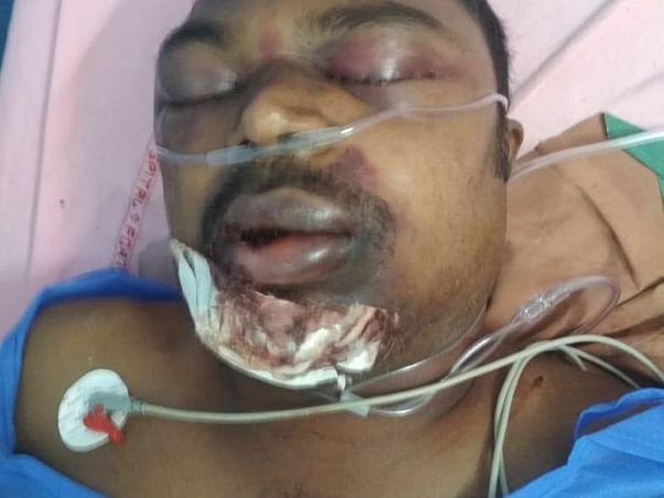 Support Bheemari Srinivas For His Further Treatment