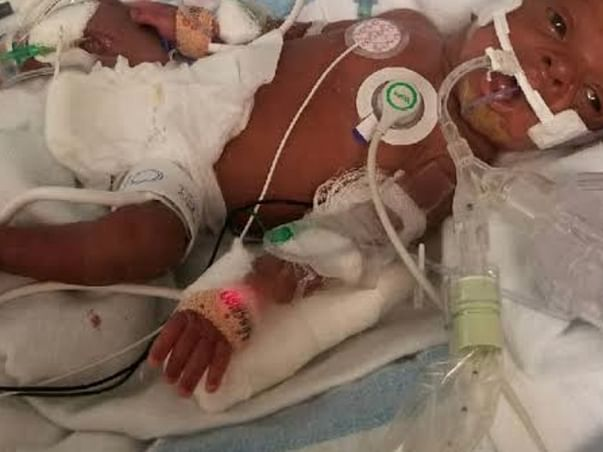 Help baby Rahul to fight heart defect