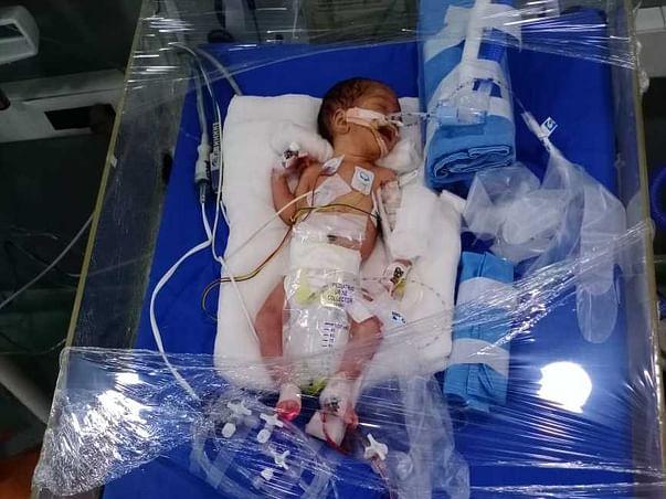 Help My Baby Fight Premature Birth