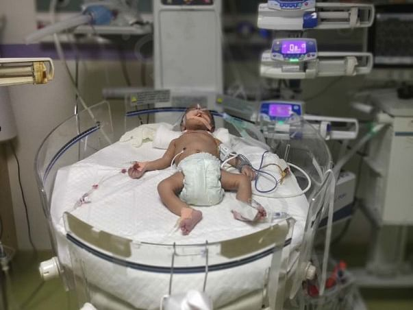 Please Help Me Save My One Month Son