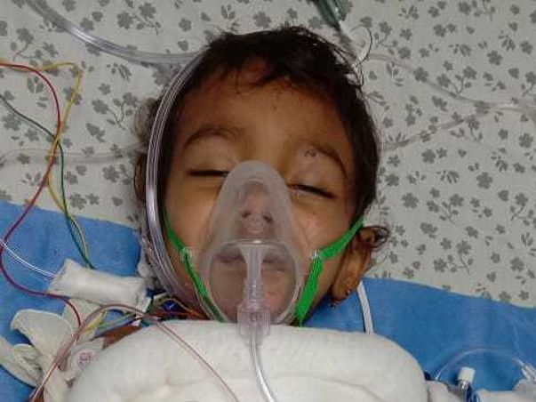 Support My Daughter To Recover From Hot Water Burns