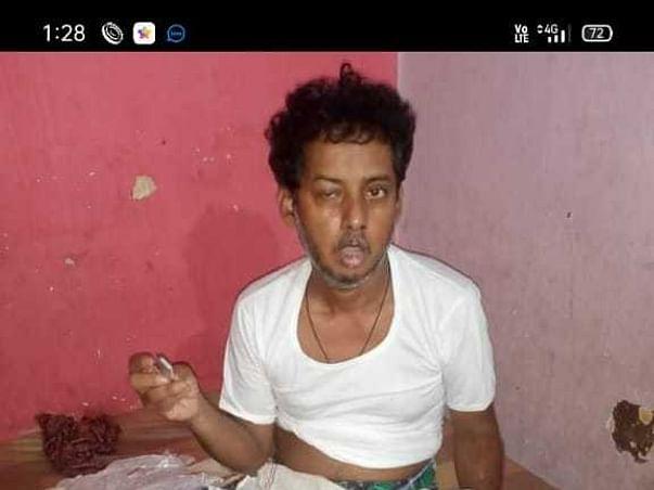 My Friend Sajeed Khan Is Fighting With Black Fungus, Please Help Him.