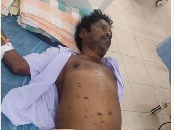 Help Srinivas To Undergo Cardiac Surgery