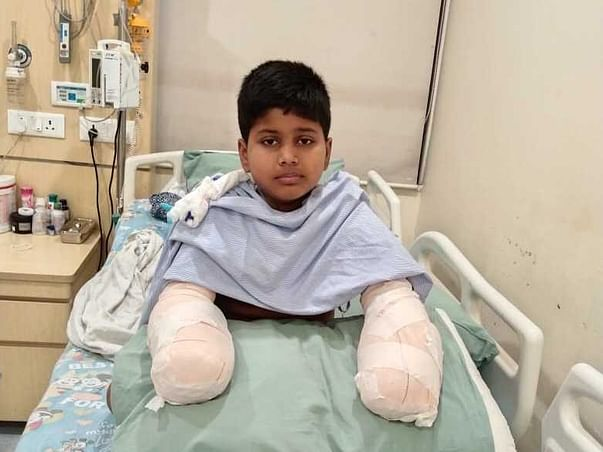 Return The Hand To This 11 Year Old Kaustuv