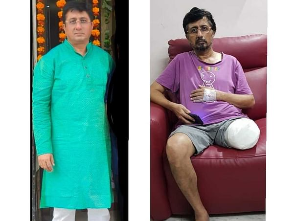 Please help Vivek Bahl stand up again on his feet and get life back