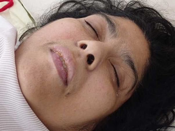 Support Suman Lata Recover From Paralysis caused by Cervical Stenosis
