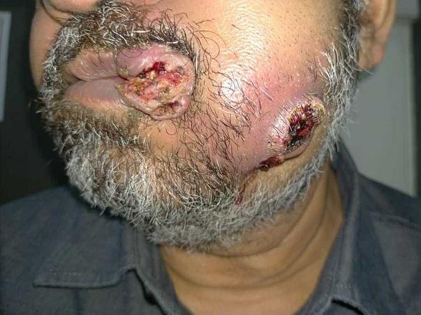 Support Mustafa Husseni Recover From Inner Cheek Cancer (BMC)
