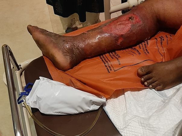 Help My Father Ali 55yrs, Recover From Leg Infection & Kidney Failure