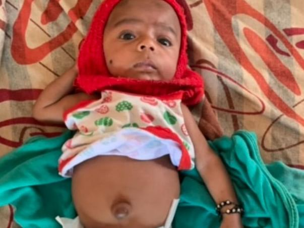 9 Months Old Subani Sheikh Needs Your Help Recover From Umbilical Hernia