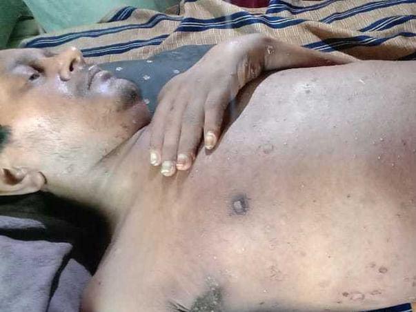 Help Pradeep save his skin