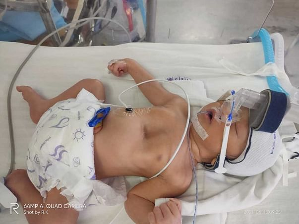 This Baby Is Battling Between Life And Death. Please Support.