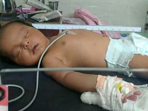 This 22 days old needs your urgent support in fighting Neonatal Seizures / Cerebral Sinus Senous Thrombosis
