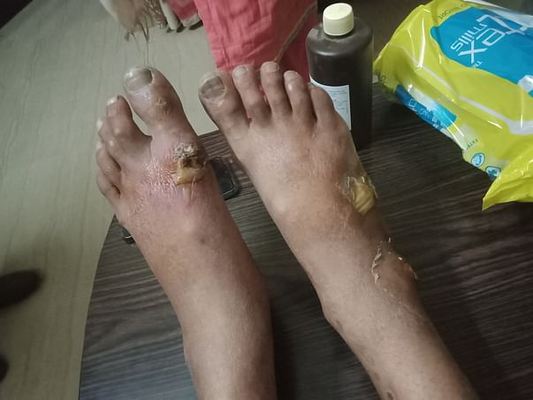 My Daughter Studies Stopped Due To Father Severe Diabetic Condition