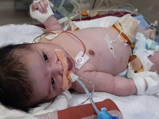 Support My Baby(Girl) To Fight With Meconium Aspiration Syndrome