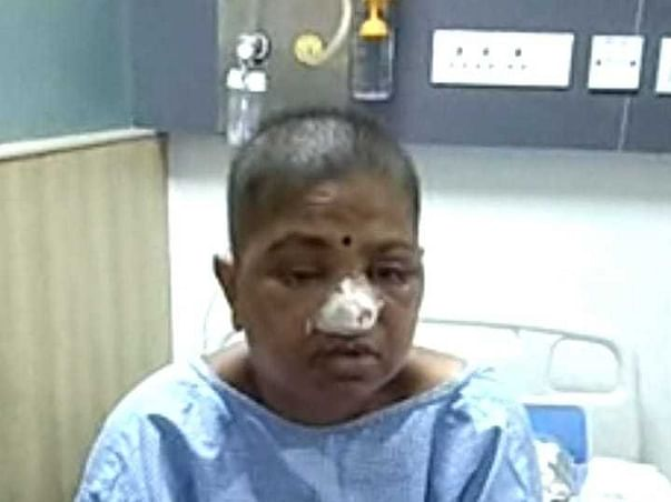 Support Tharala Sudha Recover From Black Fungus And Teeth Infection