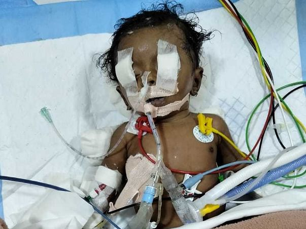 This 2 Months Old Needs Your Urgent Support In Fighting Severe Septic Shock With Empyema With Pneumothorax