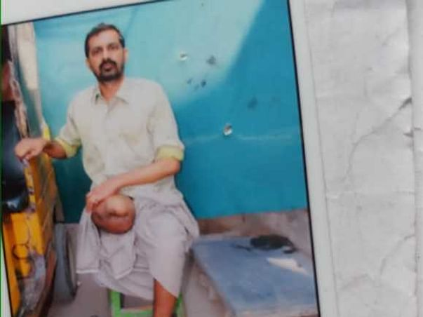 Ravi Kiran Kuruva Needs Your Urgent Support