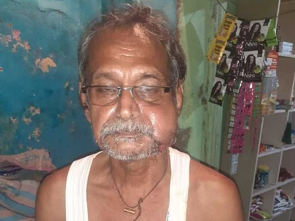 67 Years Old Subhash Mandal Needs Your Help Recover Oral Cancer.