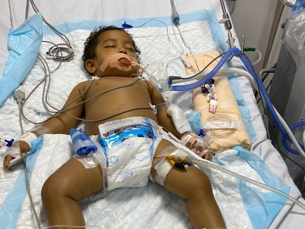 Help 1yr Old Aairah For Liver Transplant