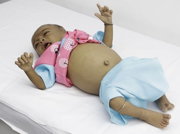 8-Month-Old Ayan Has Only 4 Weeks To Get  A Life Saving Transplant