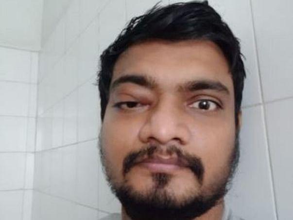 Help Varun Fight Black Fungus