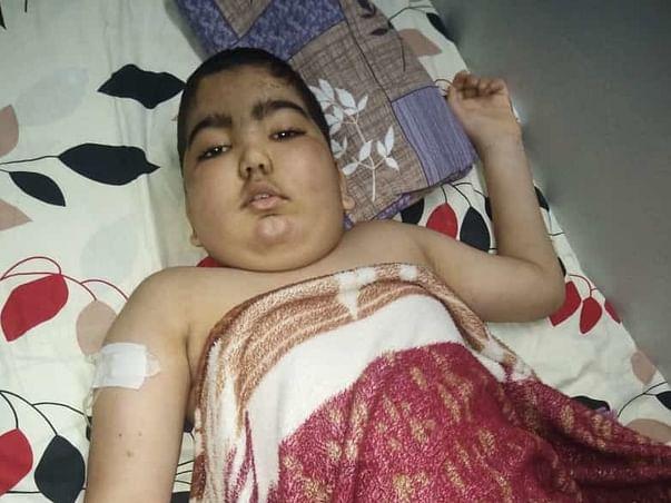 "HELP 10yr OLD ""MUHAMMED ANFAS"" FIGHTING AGAINST CANCER (BRAIN STEM GLIOMA)"
