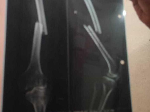 Support Md Aslam Ansari Bone Fracture